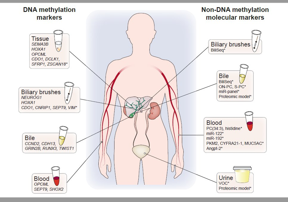 Overview of DNA methylation and non-DNA methylation molecular biomarkers for detection of CCA in in primary sclerosing #cholangitis patients. Read a comprehensive overview by @GuroLind & coworkers at https://t.co/rUbLAncfy2 #cholangiocarcinoma https://t.co/ORZq6obwxg