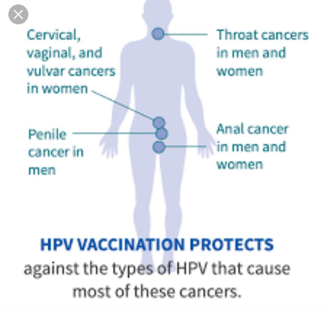 In warts 😍 women genital HPV