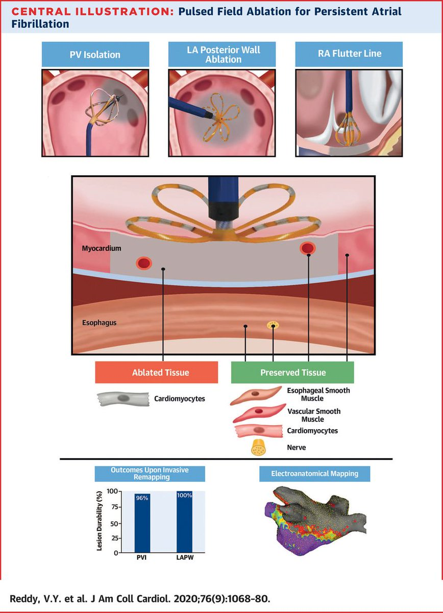 A safer and effective #AFib ablation? See the data on pulsed field ablation in #JACC: bit.ly/2QqGIo3