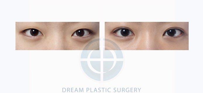 韓国で知らない人はいない⁉️#ドリーム整形外科🏥から目の手術をご紹介👀💕キツイ印象を与える目元から女性らしい柔らかいイメージに変身💞韓国整形で気になる事はHARUのLINEで解決😘▶︎HARUブログ▶︎#韓国整形 #美容整形 #HARU #目整形