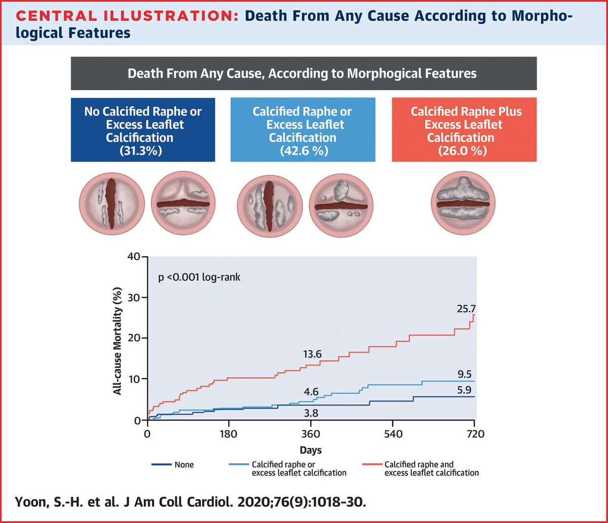 Calcified raphe and leaflet calcification in bicuspid AoV may worsen #TAVR outcomes: bit.ly/3hvMQqZ #JACC