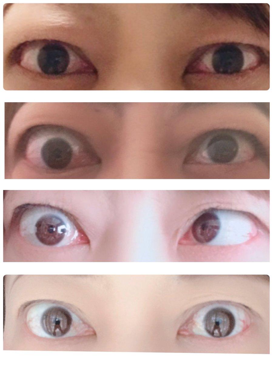 眼球 バセドウ 突出 病