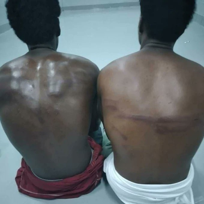 African Migrants Beaten And Tortured In Saudi Arabia Deplorable Detention Camps And Left To Die