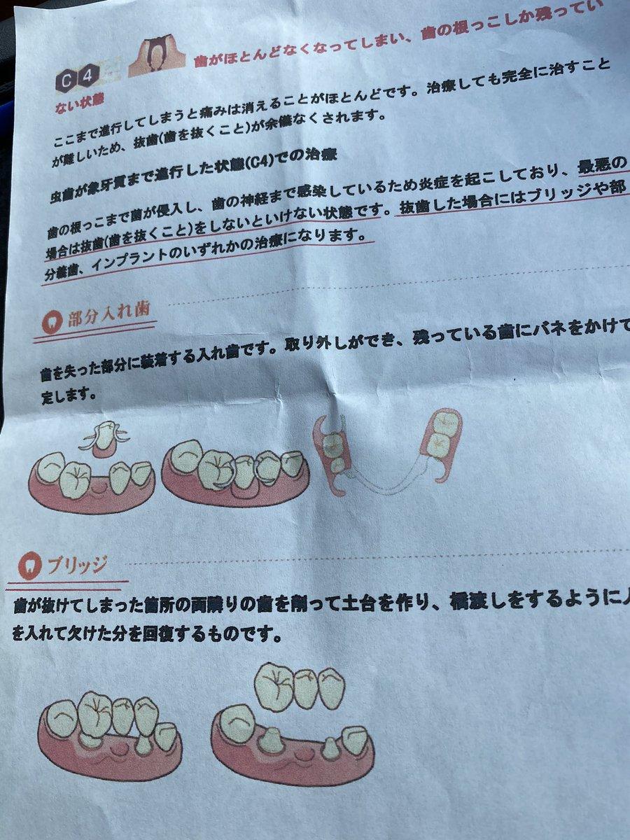 悲しいお知らせ💦歯を🦷抜かれました💦二本も、😱💦マメに歯医者🦷通い虫歯ゼロなんですが、先日歯が割れて一本は被せで…片方は入れ歯😱ブリッジは目立たないが、健康な歯を削るそう…部分にするか…インプラント❓ゆっくり考えます😂👍