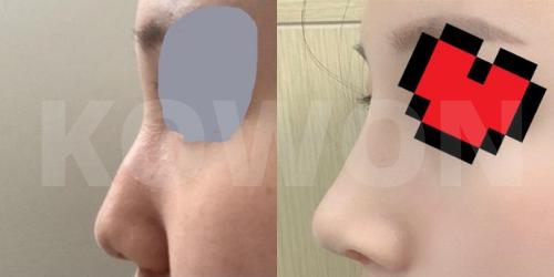 コウォン整形外科 鼻手術の症例写真です⭐️鷲鼻削り、シリコンプロテーゼ、鼻中隔延長、鼻先耳介軟骨移植
