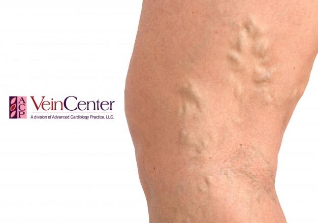 de ce se întâmplă varicoză în timpul sarcinii tratați urina varicoasă