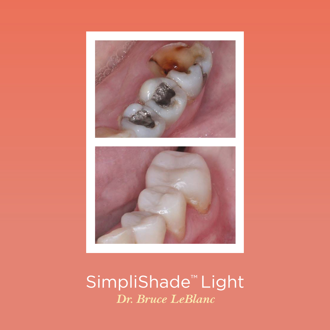 """""""Easy and seamless color blend, great polishability, no slumping, it performs as promised. I highly recommend using this product."""" - Bruce J LeBlanc, DDS from Baton Rouge, LA   Get Yours Today! https://t.co/jA2NTjlr3Y  #simplishade #simplicity #restoration #composite #dentistry https://t.co/PyRWNPoSbX"""