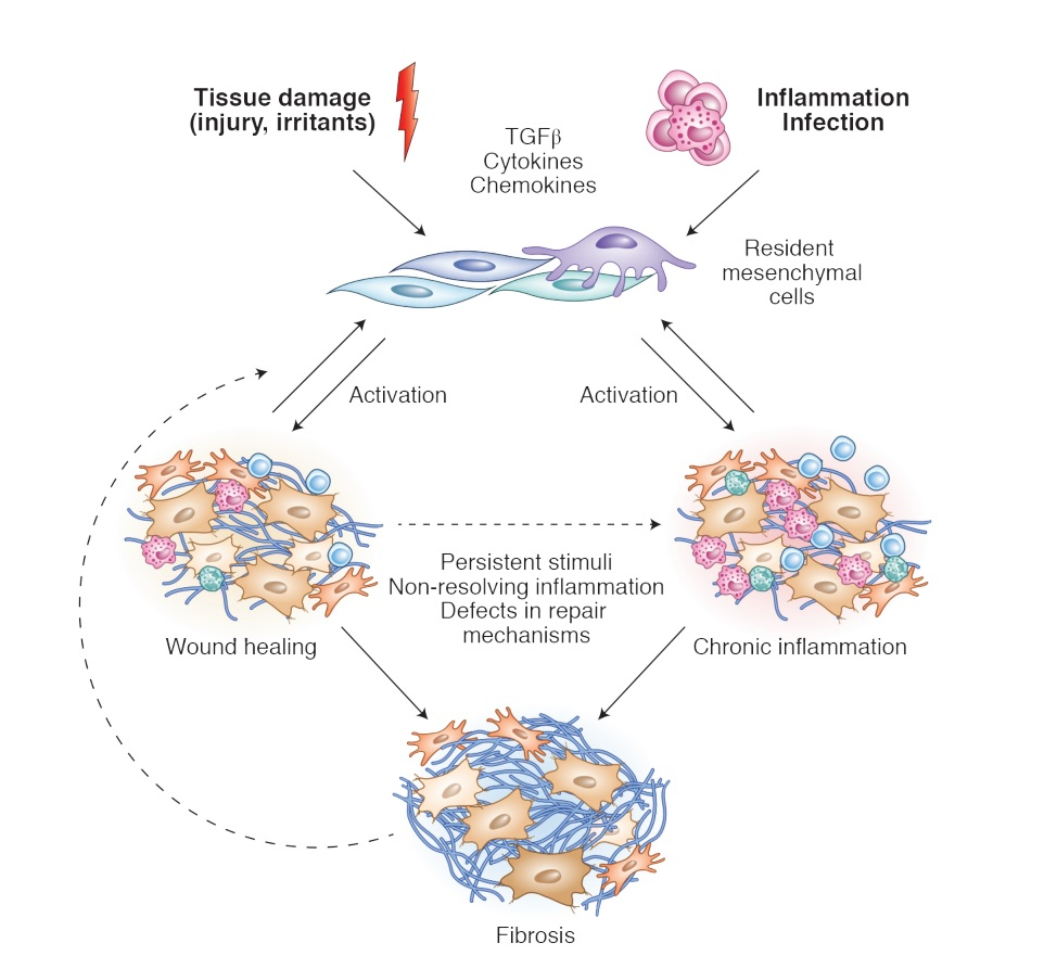 A review article on the contextual role of fibroblastic mesenchymal cells in physiology and disease @NatImmunol by the laboratories of #Koliaraki @MariettaArmaka and @KolliasLab @BSRC_Fleming #mesenchymal_cells #cancer #inflammation https://t.co/6dVDaHaiJm https://t.co/Ndi9HMeaCW
