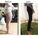 【反り腰】の方必見!姿勢よくなることは、ダイエット成功と大きく関係している?!