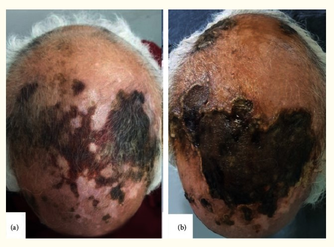 Scalp #Necrosis Revealing Severe #Giantcellarteritis https://t.co/FrcL1PFGEm  Rare, and this is worse than any I have seen....  #vasculitis https://t.co/XWkOhHeFKp