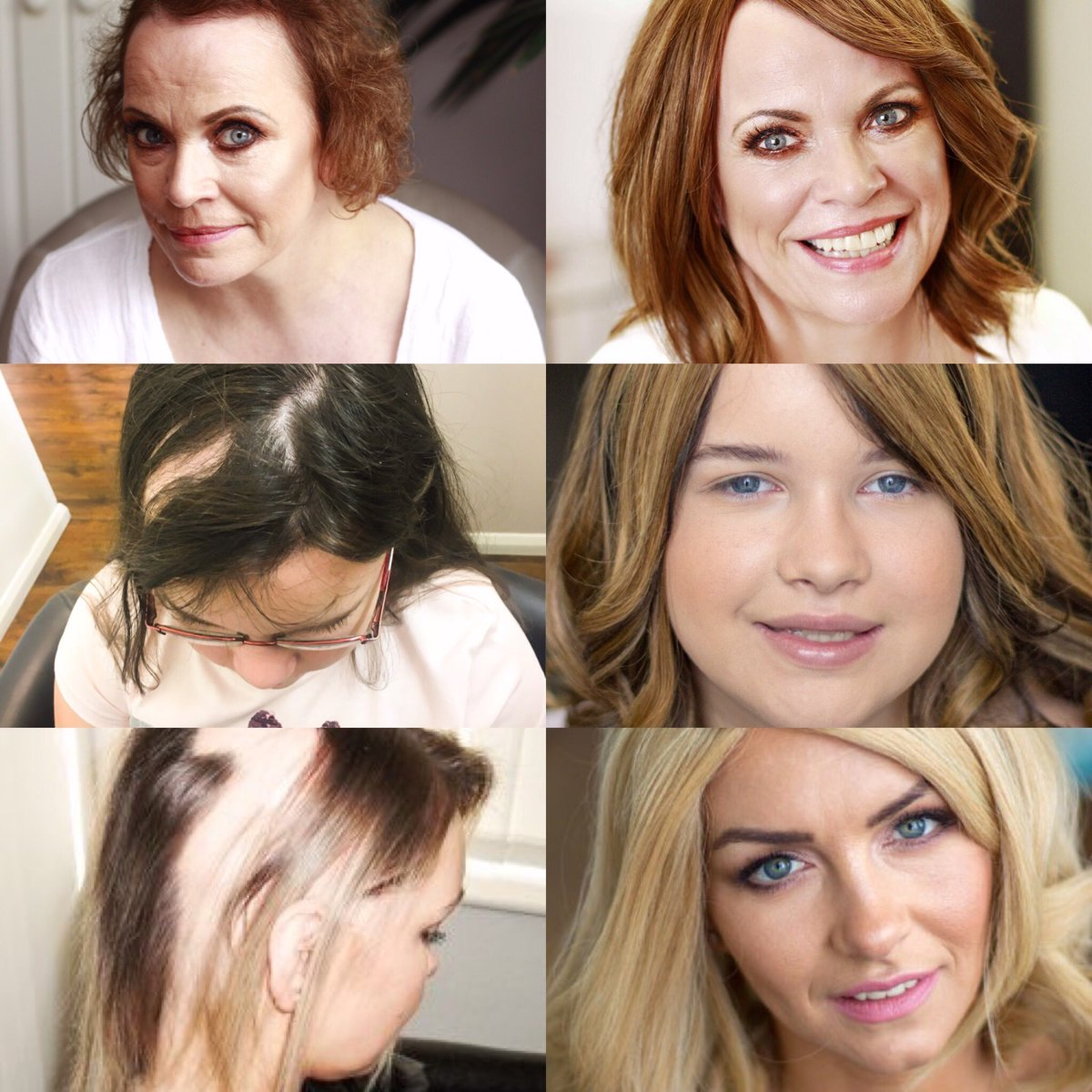 We love to see the transformation the Enhancer System makes to clients #hairloss #femalehairloss #hairsystem #hairlosssolution #hairlosstreatment #hairfall #alopecia #alopeciaareata #frontalfibrosingalopecia #alopeciatotalis #alopeciauniversalis #hairsolved #nofilter