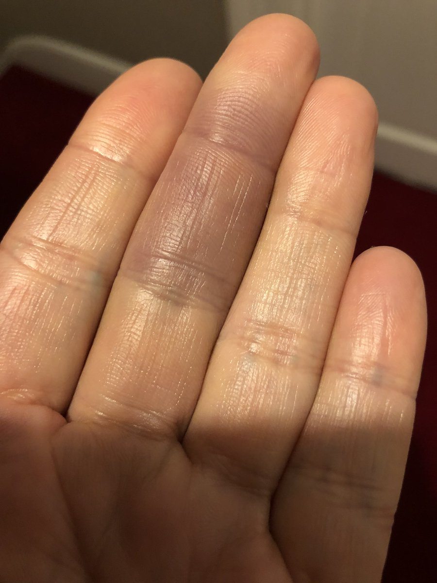 #MedTwitter What is happening to my middle finger and why? Spontaneous painless bruising for 2nd time in 2 weeks. Otherwise fit+well https://t.co/IXZ6n59aNw