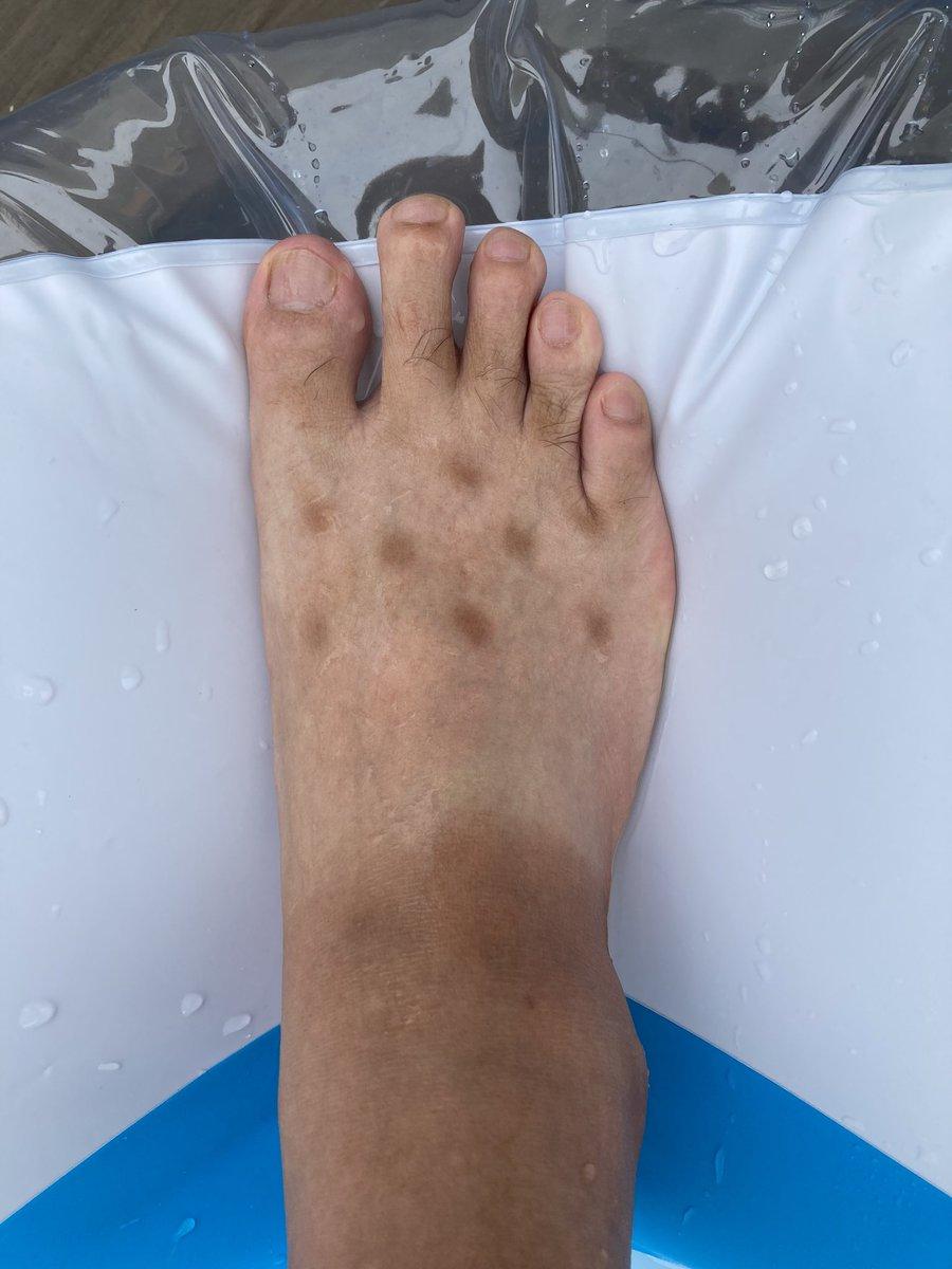 找到了腳上謎之斑點的來源 EhxD5hpVgAUasYJ