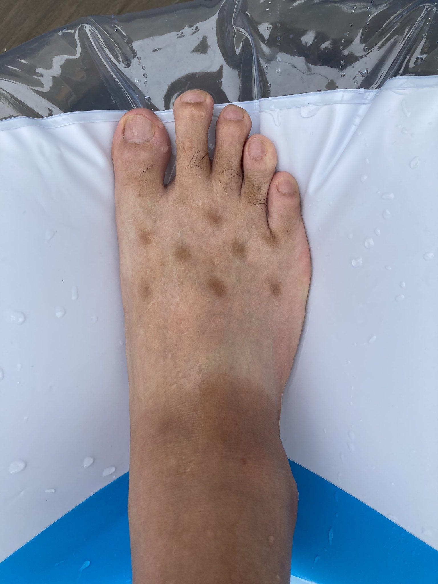 足に広がる謎の斑点01