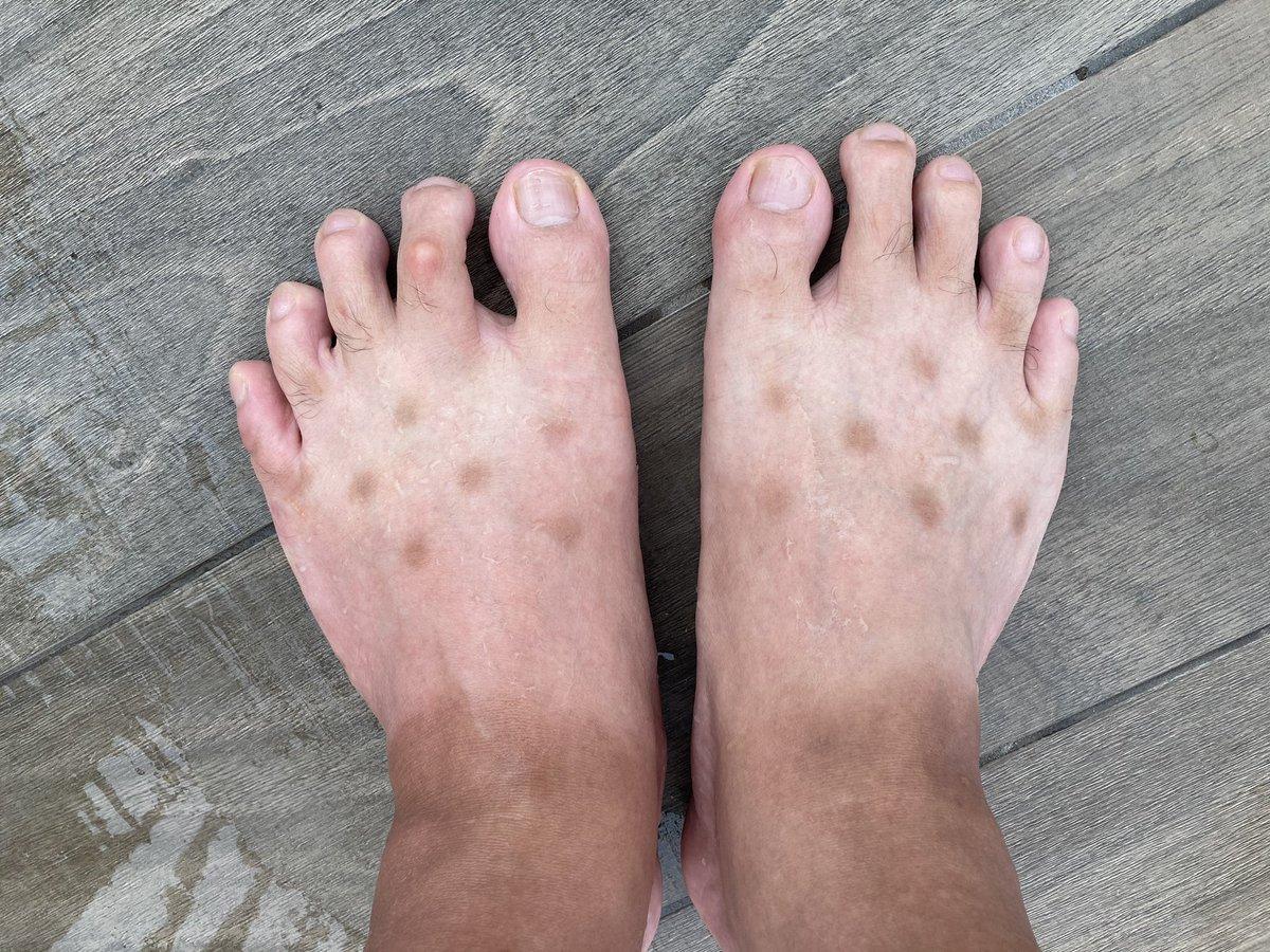 找到了腳上謎之斑點的來源 EhxD5htUcAAnUdr