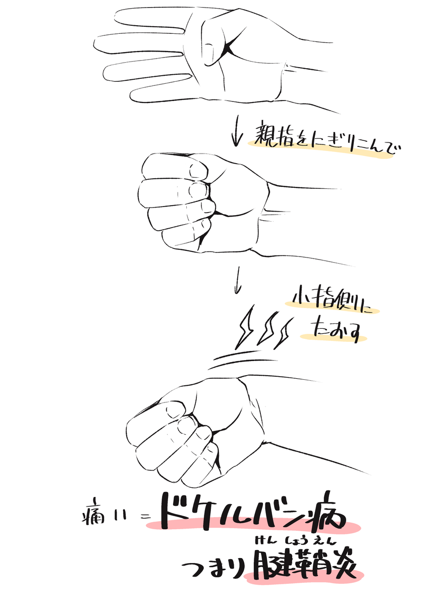 腱鞘炎かのチェック方法
