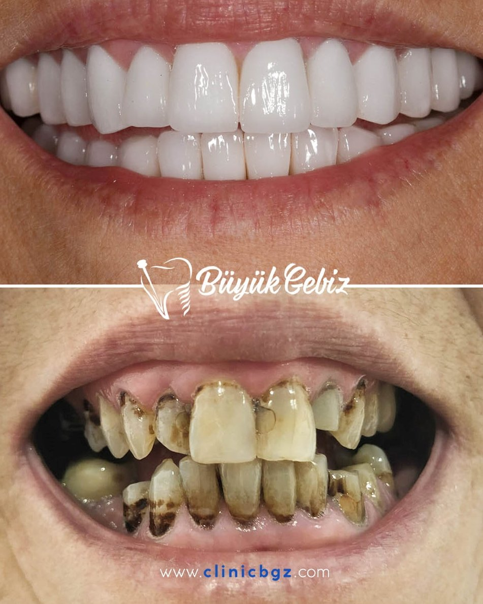 Thats really incredible transform. For an amazing smile like this just contact us  #veneers #dentisrty #dentist #implants  #cosmeticdentist #smile #teeth #aesthetic #london #dentist #smiledesign #unitedkingdom #uk #deutschland #teethwhitening #hollywoodsmile #smiledesign #europe https://t.co/8DnPWqbciP