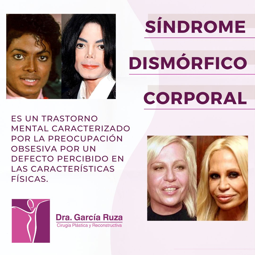 ¿Te gustaría sabe más sobre éste #Sindrome?   Te invito a ingresar en https://t.co/fWxmRfLAed y lee el artículo completo.  #CirugiaPlastica #Cirujano #Clinica #CirugiasPlasticas #SindromeDismorficoCorporal #MichaelJackson #DonatellaVersace #MedicosEnCaracas  #DraGarciaRuza https://t.co/ybKJarjivH