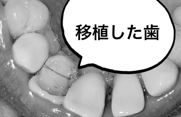 相変わらず歯茎痛い〜😢歯茎まだ腫れてて口ゴボに磨きがかかってる〜🐠今日初めて移植した歯の写真撮ってみたけどこれが経過良好なのかわからない🤷♀️インプラントは一度入れたらもう動かすことは出来ないけど自家歯牙移植の歯は定着すれば矯正で動かすことも可能なんだって💁♀️✨トリビア⛲️