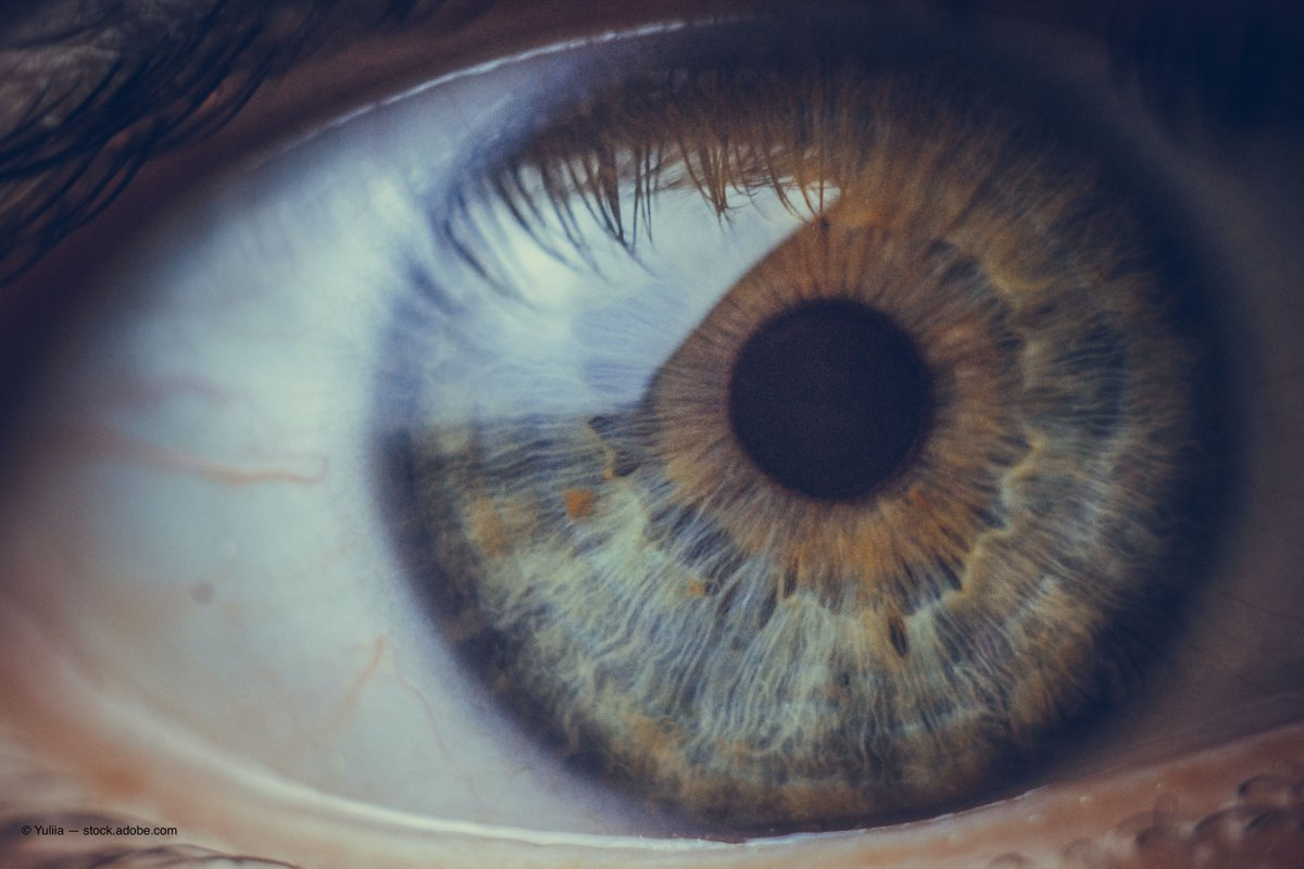 test Twitter Media - Are posterior corneal curvature changes culprit in hyperopic shifts? #ophthalmology  https://t.co/VL7ofY4xpt https://t.co/zsMhbutyES