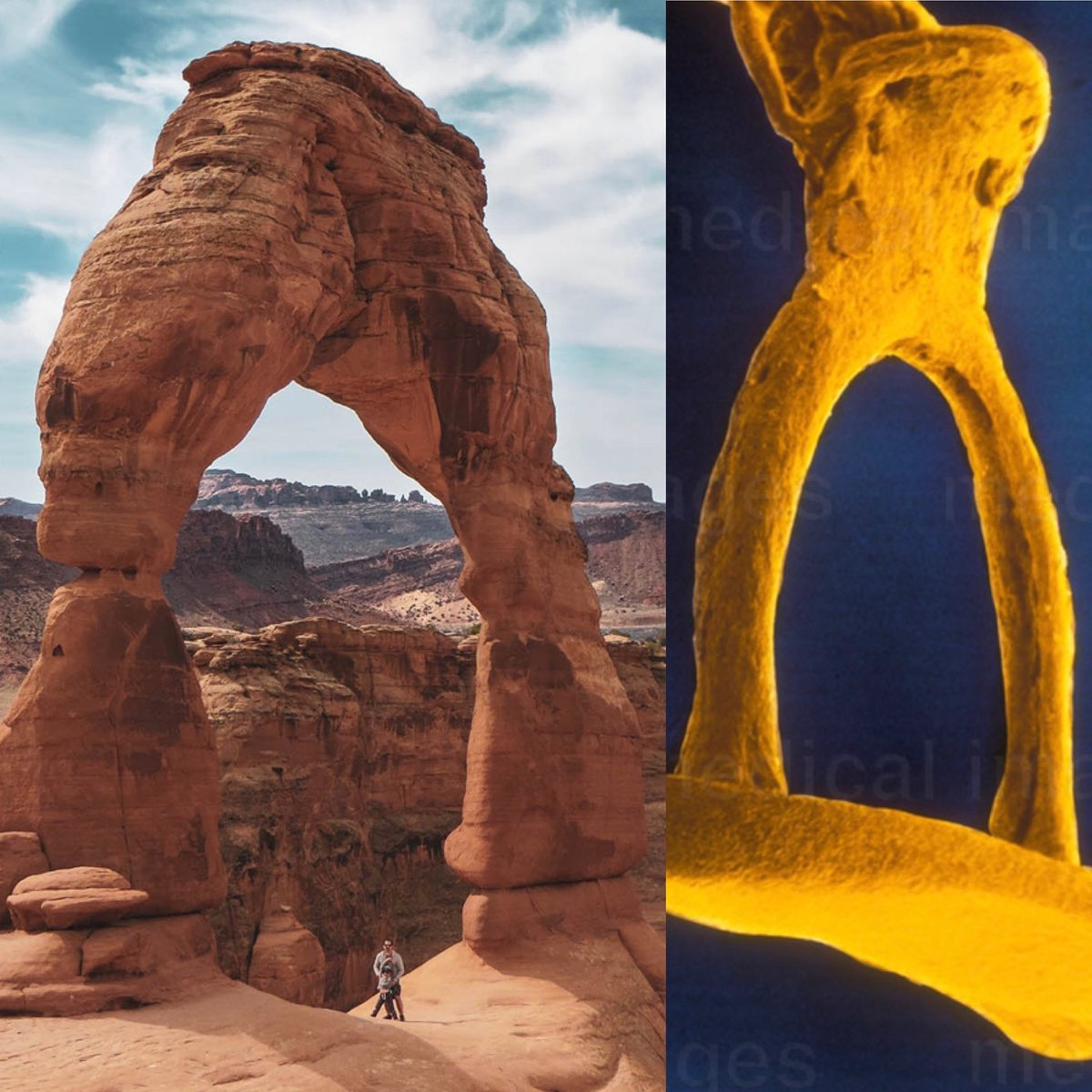 Demonstrated the auditory ossicles in medical gross anatomy lab this week and for the first time noticed the similarity between the stapes and Delicate Arch!  #anatomy #arches #moab #stapes #ossicles #ear #earth https://t.co/NAo7W6Uqoc