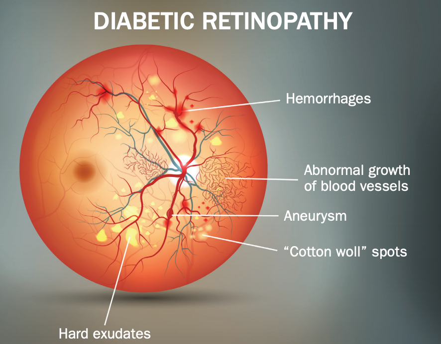 test Twitter Media - Machine-learning algorithms could help predict course of NPDR, according to results of a new study. #diabetes #diabeticretinopathy #ophthalmology  https://t.co/JQ4CURYMgi https://t.co/PuFyZwTqbW