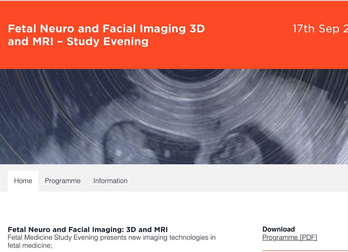 Imperial College study evening this Thursday in featal neuro and facial imaging - run by @Christoph_Lees  https://t.co/vjtOFUnPkx https://t.co/ZDbJqir52w