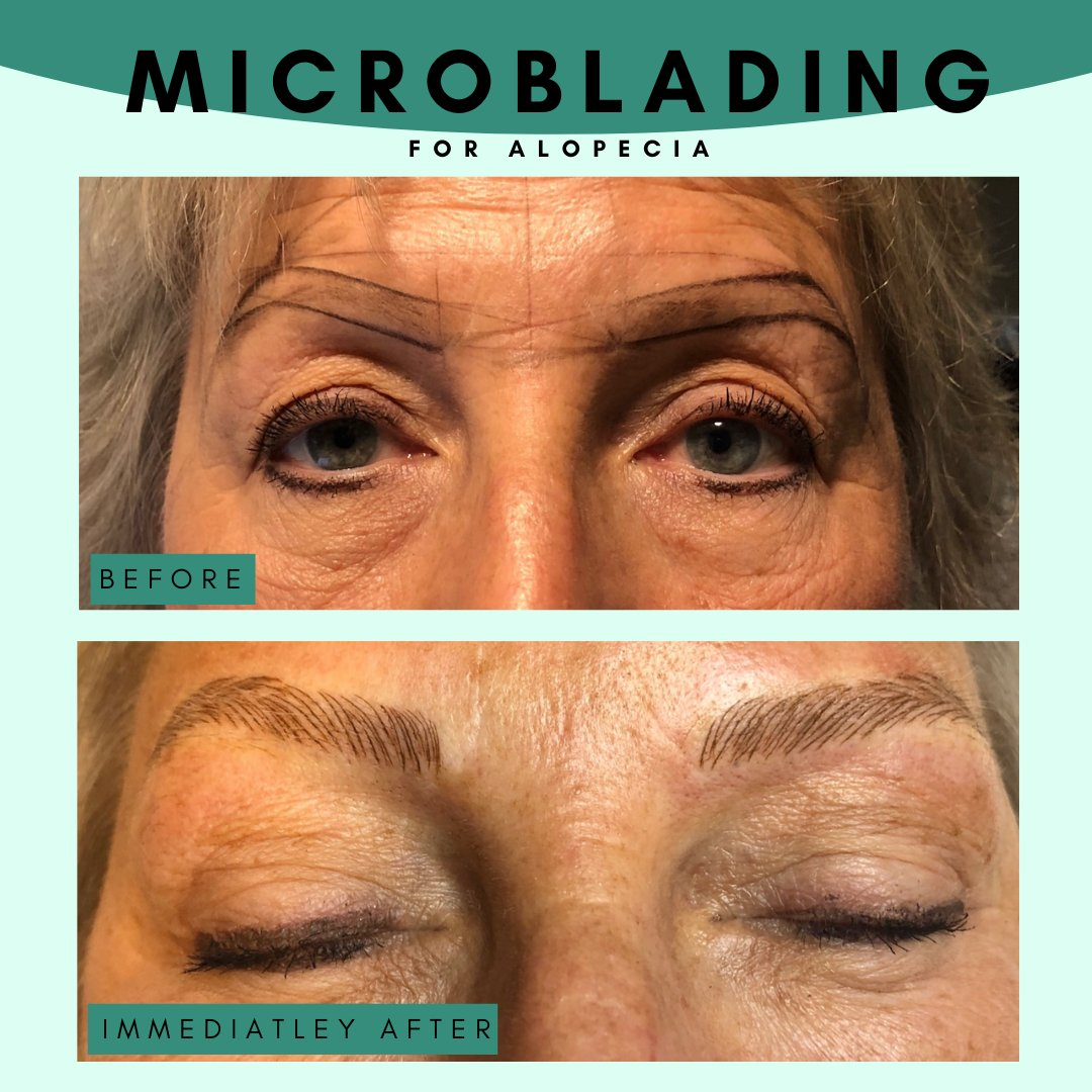 """""""Thankful I still have perfect brows when I wash my makeup off"""" This can be you!! Book in for microblading to have perfect brows 24/7!   #dtburlon #villagesquare #microblading #eyebrows #spa #backtoschool #backtowork https://t.co/zSEHIOU84R"""