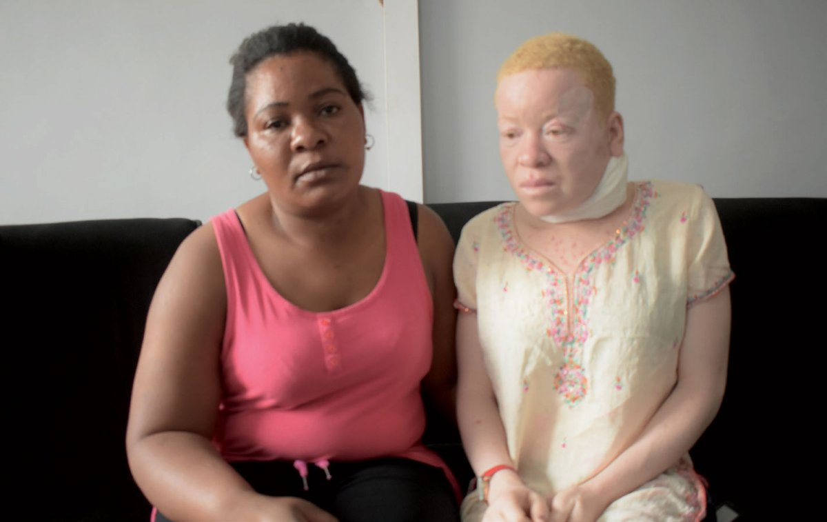 20 year old girl in need of support for treatment  A 20 year old girl with albinism Memory Juma is looking for assistance from well-wishers to access cancer treatment abroad.  https://t.co/KWAk52BCBj https://t.co/57cPLjjDbb
