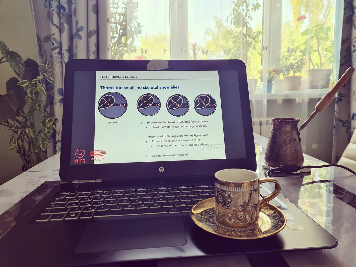 Good morning ⚘online congress is convenient, you sit  at home, listening with a cup of coffee, but I prefer to attend it live and live communication with colleagues #isuog https://t.co/o5CHiiU5C8