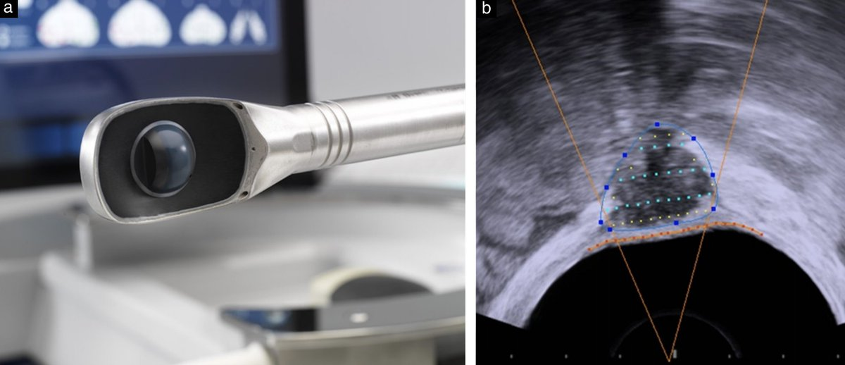 Transrectal high‐intensity focused ultrasound therapy for posterior deep infiltrating endometriosis is feasible, efficacious and safe, finds new #freeaccess phase‐I clinical trial by Philip et al. #ISUOG #UOGJournal https://t.co/yR301VGIX8 #LoveUltrasound https://t.co/TsI1sP2Hfd