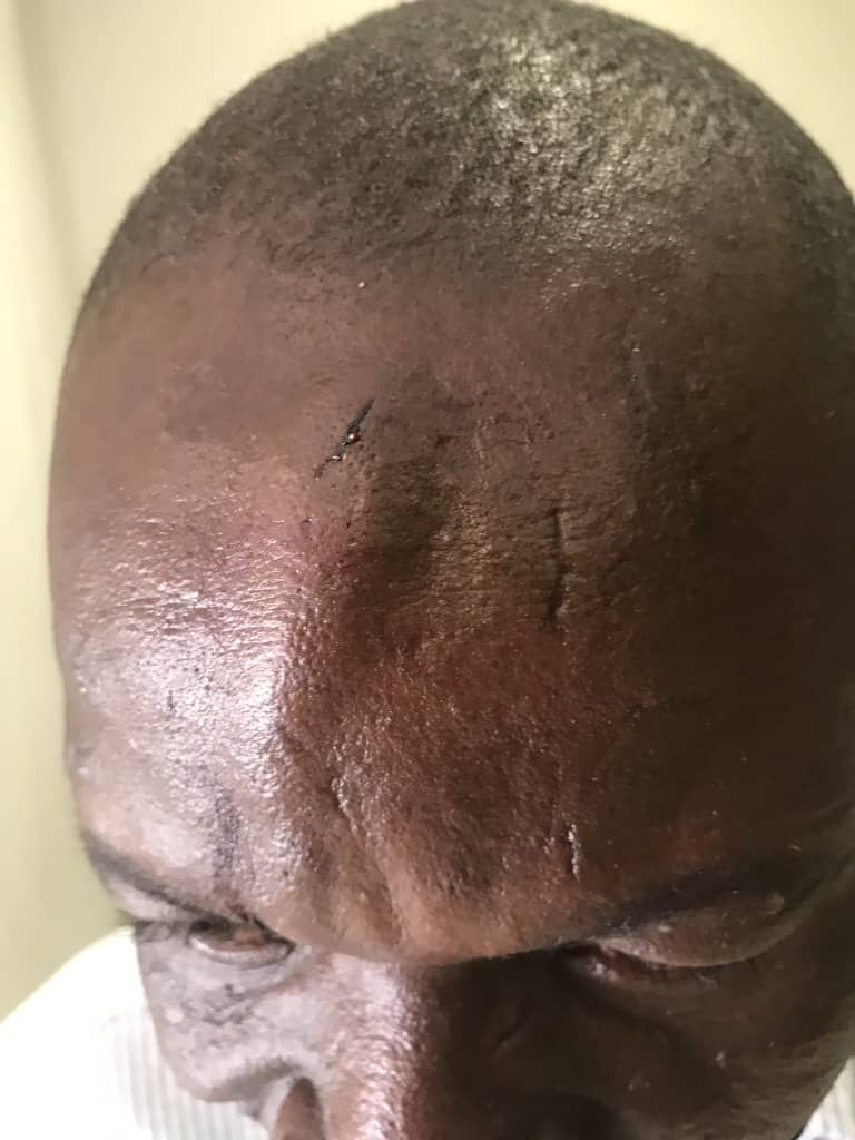 Journalists assaulted, recording devices damaged and a phone belonging to @ThomasMadhuku stolen by unidentified assailants at @Zinasuzim presser 3 hrs ago. The assaulted incl:@ChokoMunashe @godwinmangu  @misazimbabwe @CPJAfrica https://t.co/Je5KJ3OTRZ