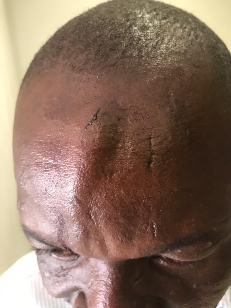 #Alert journalists beaten and equipment broken while covering press conference in from of armed police who stood and watched. @bbmhlanga sad day @r_muchenje @Ruegraced