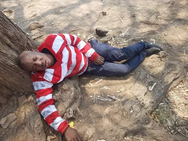PICTURE: Takudzwa Assaulted, Left For Dead https://t.co/b7yDlBK5im via @zimeye https://t.co/ZxbaVmWOZ4