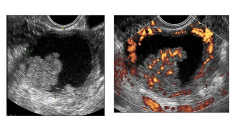 New #ISUOG Education quiz: Which of the following is NOT usually visible on transvaginal ultrasound assessment of the pelvis in women with suspected #endometriosis?   a. Rectal DIE b. Bladder DIE c. Vaginal DIE d. Pelvic side wall superficial endometriosis https://t.co/Bsvrmvw2Co https://t.co/XkA29C9OiX