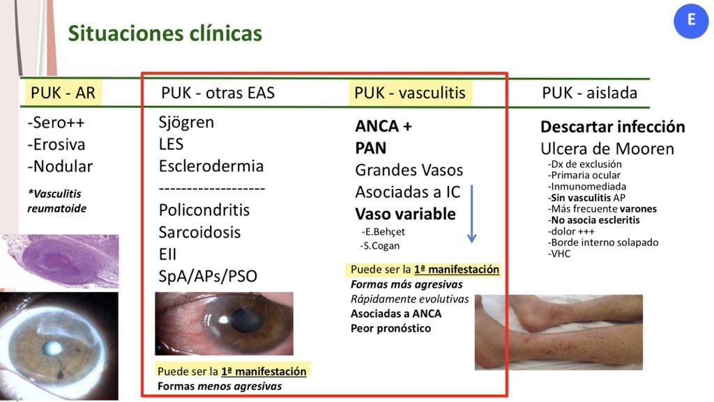 #Reumatopics20 @SEReumatologia  No todo es uvea en el ojo. La Dra @emma_beltran y el Dr @DrAlfredoAdan nos plantean el punto de vista de cada especialidad:  Os dejo algunas diapositivas q resumen esta magnífica charla 🔴PUK https://t.co/NOdno2EqP0