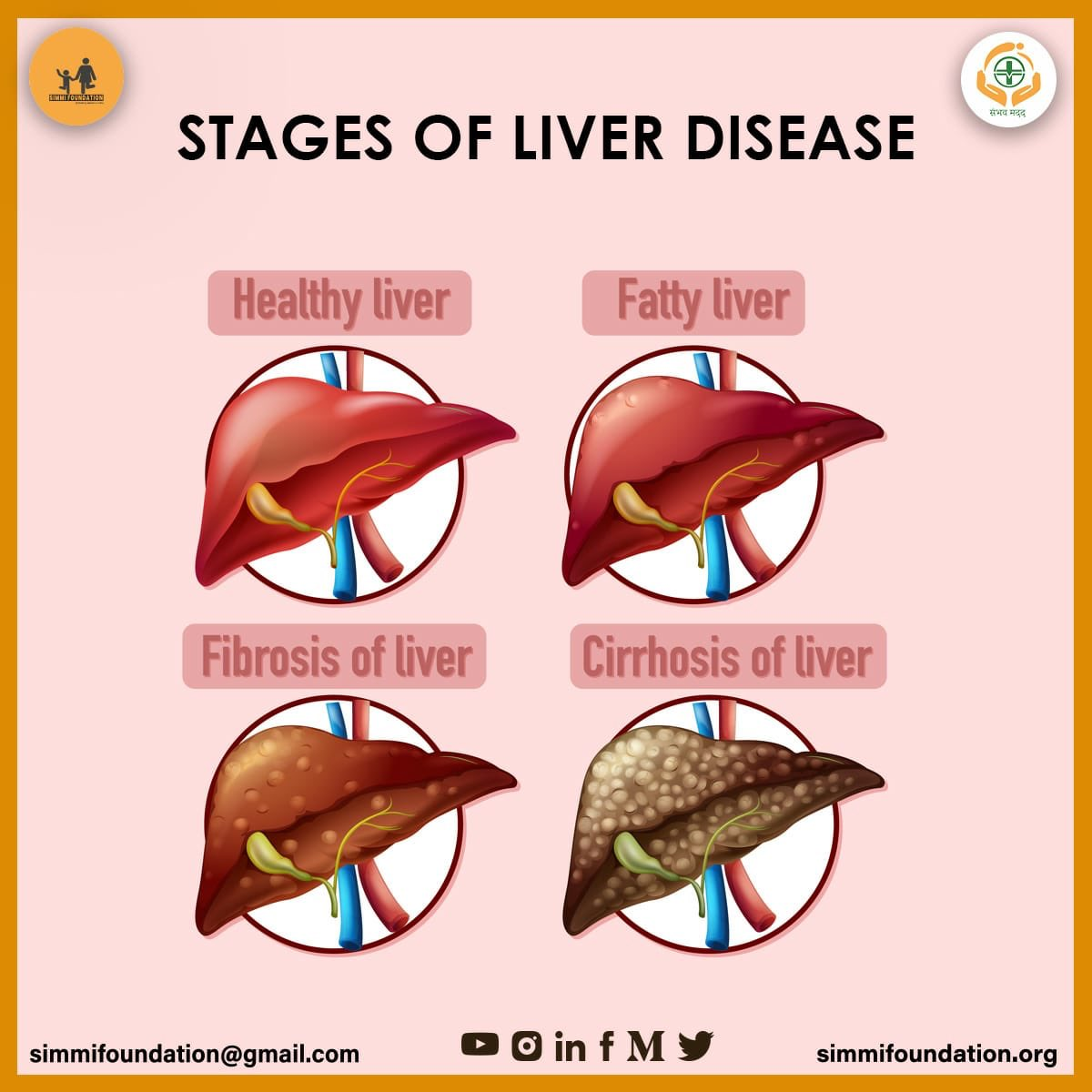 1. The first sign of liver damage is inflammation 2. Fibrosis is the start of liver scarring 3. More severe scarring leads to cirrhosis 4. Liver failure  #simmifoundation #sambhavmadad #liver #disease #treatment #stages #medication #cirrhosis https://t.co/hrdbyP8tgQ
