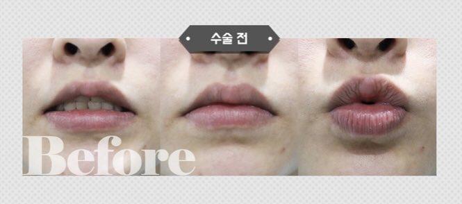 🧡チョンダム女神整形外科🧡項目 : 口角リフト+外側人中手術当日, 15, 30, 90日目の経過写真とアフターです📷通訳+送迎+宿泊サービスも🌈📎 💌 #整形 #韓国整形 #整形通訳 #人中短縮 #人中縮小 #面長改善 #中顔面