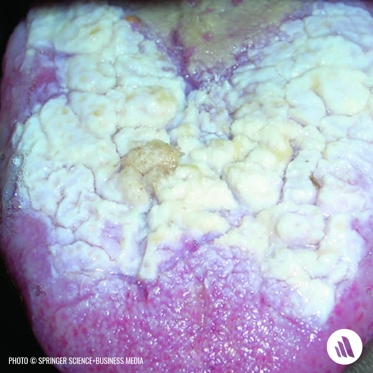 Can you name this condition? [Hint: The irritated spot appears white because it has a thickened layer of keratin, which normally is less abundant in the oral mucosa.] #Medical #Trivia https://t.co/YbYRMdhbwq