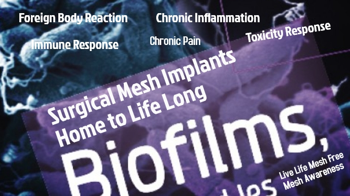 The Pathological Untruths of Safety and Efficacy of Permanent Surgical #Mesh Implants continues . . . There is NO Long Term Studies on the Complex Multiple Complications from these #TOXIC Plastic #MedicalDevices #PatientExperience is often IGNORED by #Doctors The #Data is FLAWED https://t.co/1KUrd6kFKE