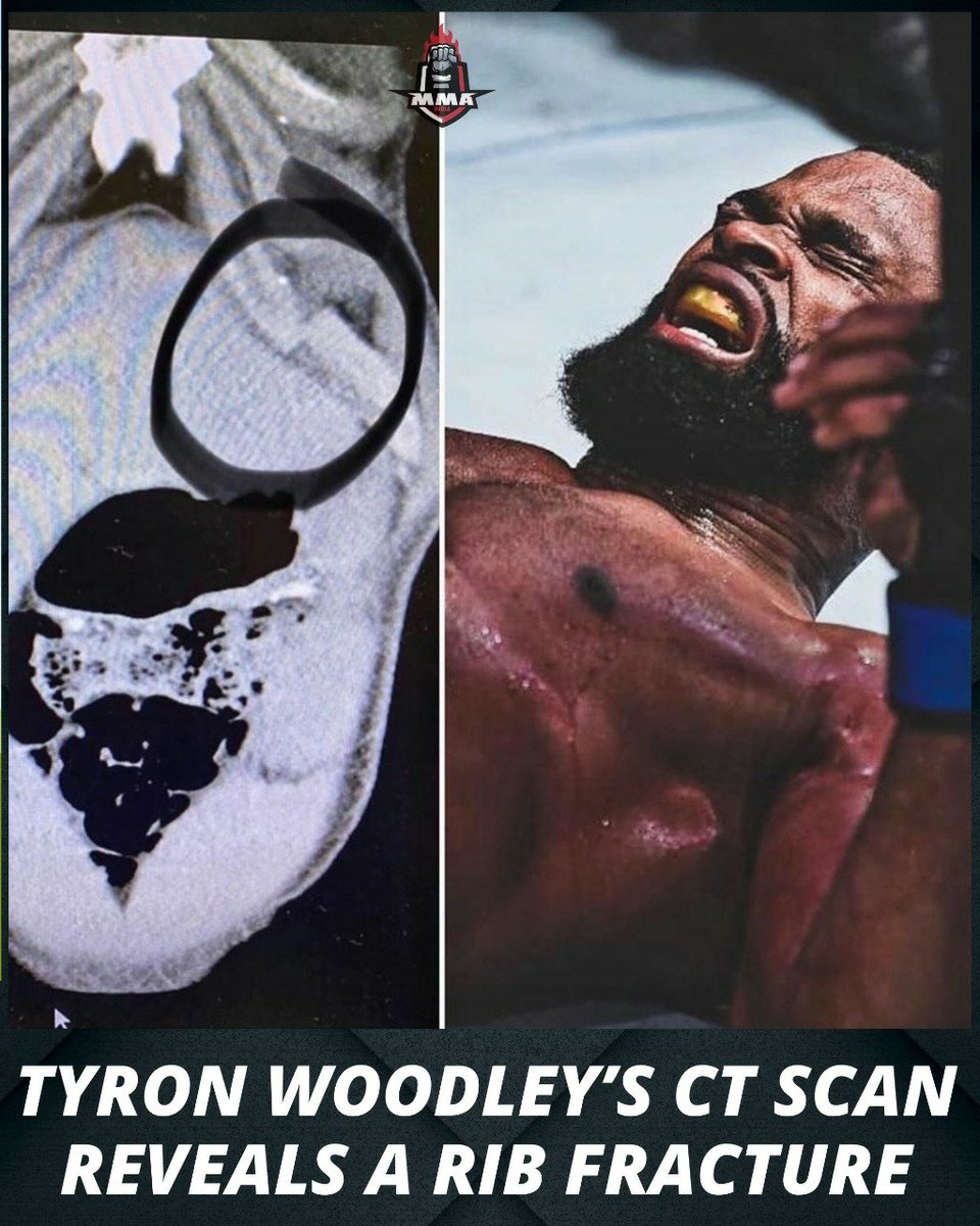 Tyron Woodley's CT Scan reveals a rib 🦴 fracture  He has now lost all 15 rounds of his past 3 fights. It's not looking good for Woodley ☹️  What's next for the former champion? 👇  #UFC #MMA https://t.co/qDBfOHkUoU