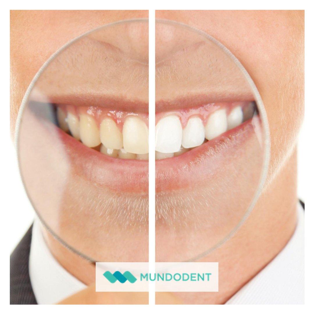 Recuerda que el cepillado dental no es suficiente! Visita a tu dentista y realiza una limpieza bucal, al menos, una vez al año 👏  #mundodent #clinicadental #clinicadentalmadrid #ortodoncia #implantologia #teeth #sonrisa #saluddental https://t.co/fWTDssowRG