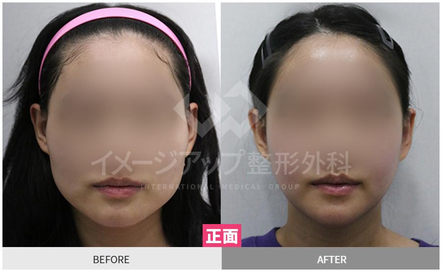 今はイメージアップタイム‼韓国のイメージアップ整形外科です✨今回は当院で輪郭3点の手術を受けた方の症例写真をご紹介させていただきたいと思います🥰※この医学用写真の著作権はイメージアップ整形外科にありますので無断転載、複製、配布を禁止します。