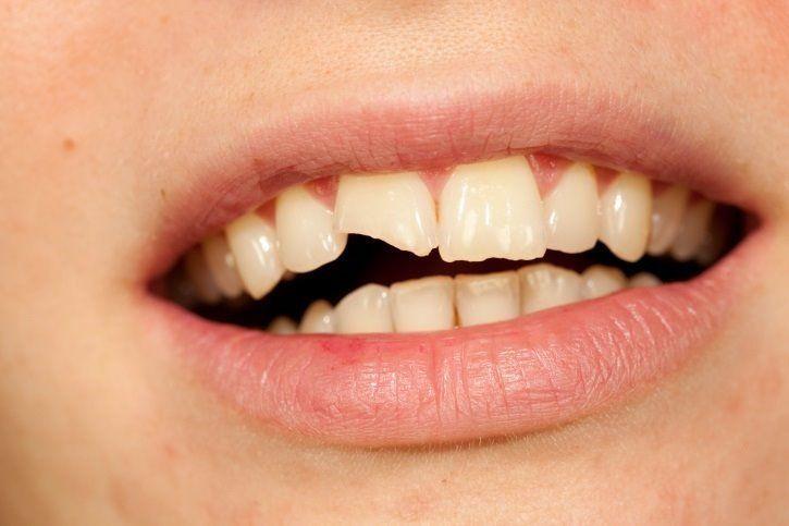 👉 NOTICIAS: Qué hacer ante un traumatismo dental en los niños: ¿y si se rompe o sale el diente? https://t.co/FTHhRdMGuz   #OdontologíaAvanzada #Odontólogo #Ortodoncia #Salud #EstéticaDental #Jerez #ClínicaDental https://t.co/cXEU9CF6yQ