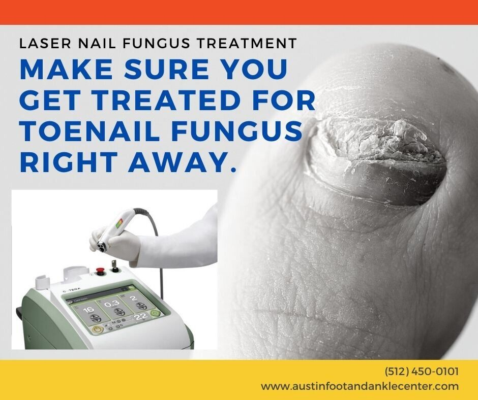 Make sure you get treated for🦶 toenail fungus right away at Austin Foot & Ankle Center. ⏰ We provide state of the art laser treatment in Texas. https://t.co/ZcXBzSiRU2 #treatment #laser #foot https://t.co/nFFQuBypxv