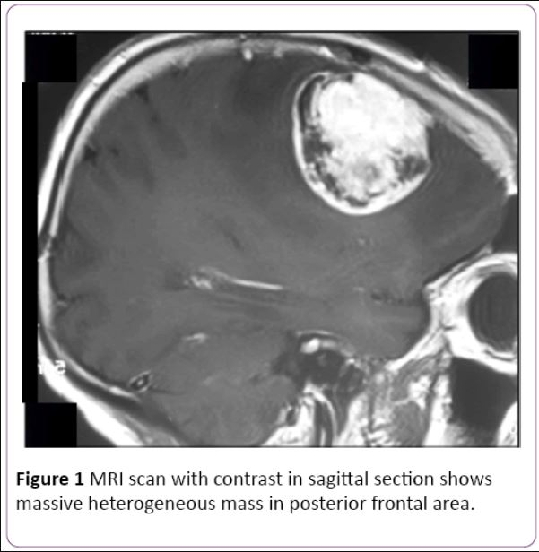 Successful #Treatment of Primary Intracranial #Malignant Peripheral #Nerve Sheath #Tumor in Iranian Child: Case Report............... https://t.co/8Bch15CALV https://t.co/n1HfJzBEwr