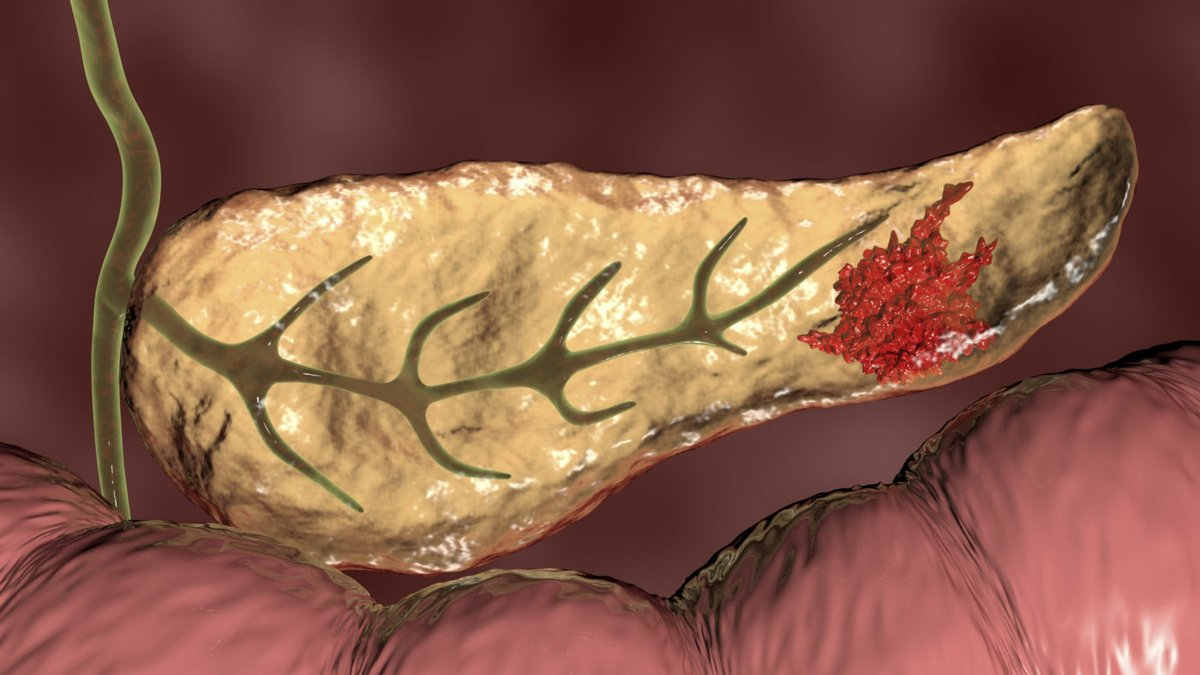 Interesting new research out of @MayoClinic and @TGen on specific potential therapeutic targets for the most aggressive and lethal form of pancreatic cancer. https://t.co/bPaOIH4ePA  #pancreaticcancer #treatment #research #mayoclinic #hope https://t.co/dT7h8poeWt
