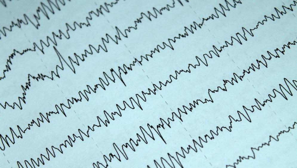 #nota Docentes y estudiantes del @IBalseiro participan en investigaciones de diagnóstico y tratamiento de la #epilepsia  Link: https://t.co/Nqee3HN1ey  Fuente: Prensa @CONICETDialoga / María Bocconi  cc/ @CNEA_Arg @UNCUYO https://t.co/bpHBA36OGp
