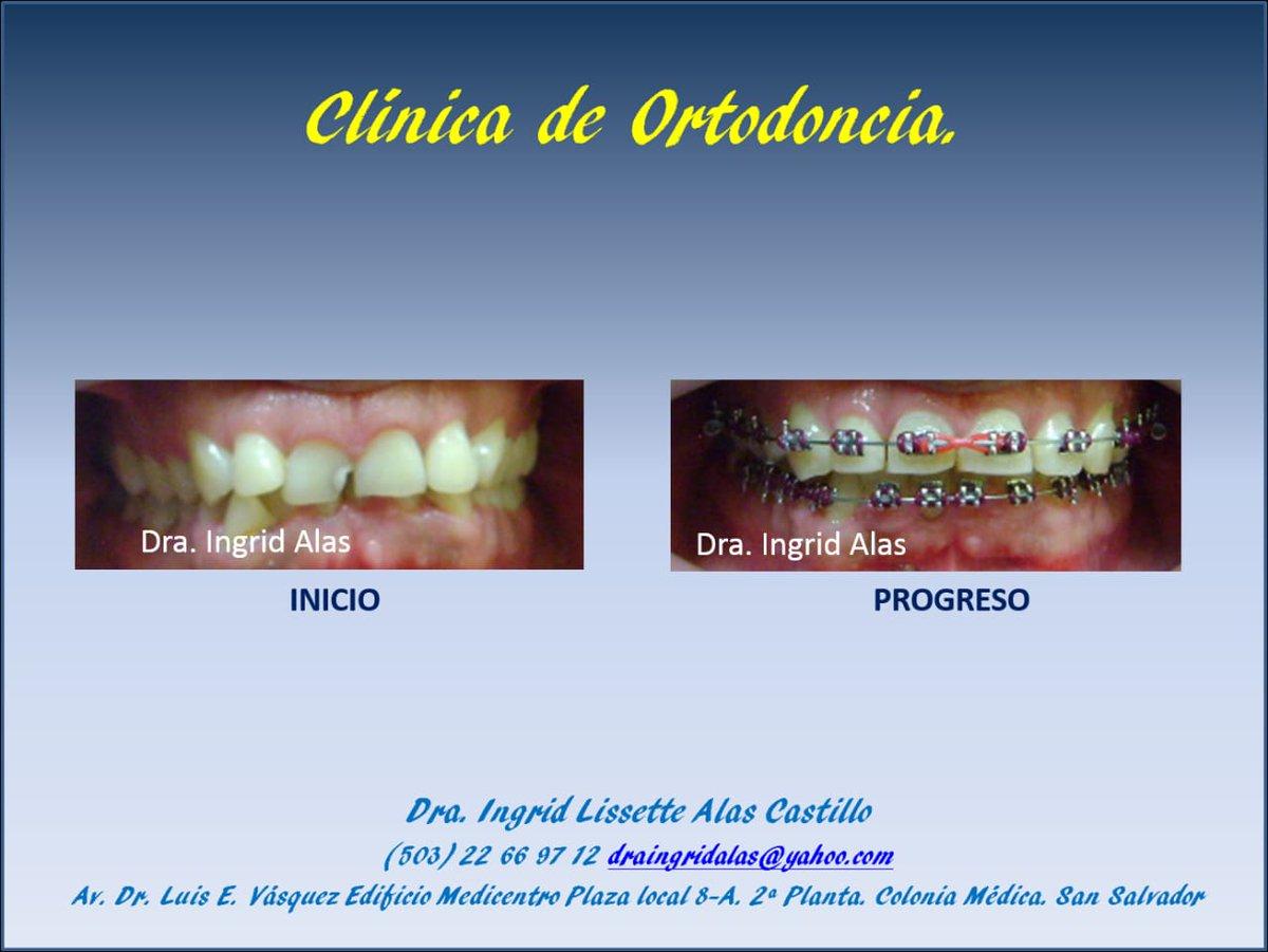 #bracketsmetálicos #ortodoncia  #adultos #limpiezabucal https://t.co/kND6LMajbQ
