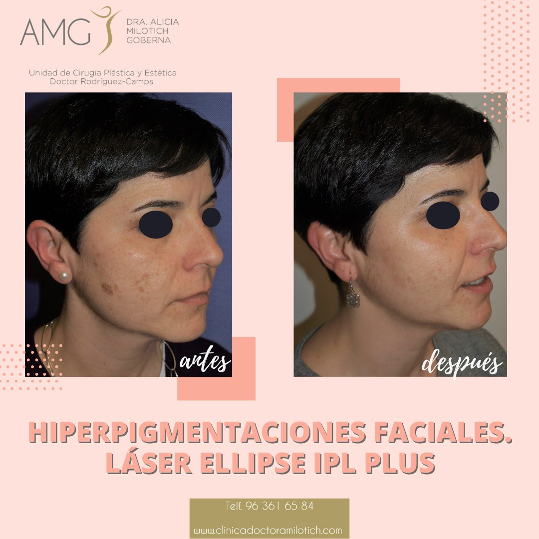 Con el #tratamiento fotofacial que utiliza luz pulsada intensa (#IPL) es posible quitar las #manchas de sol, rosácea, hiperpigmentación, venas y arañitas faciales. Se trata de uno de los últimos avances en dermatología que transforma la #piel manchada en una dermis saludable. https://t.co/RndsRQ6jBU